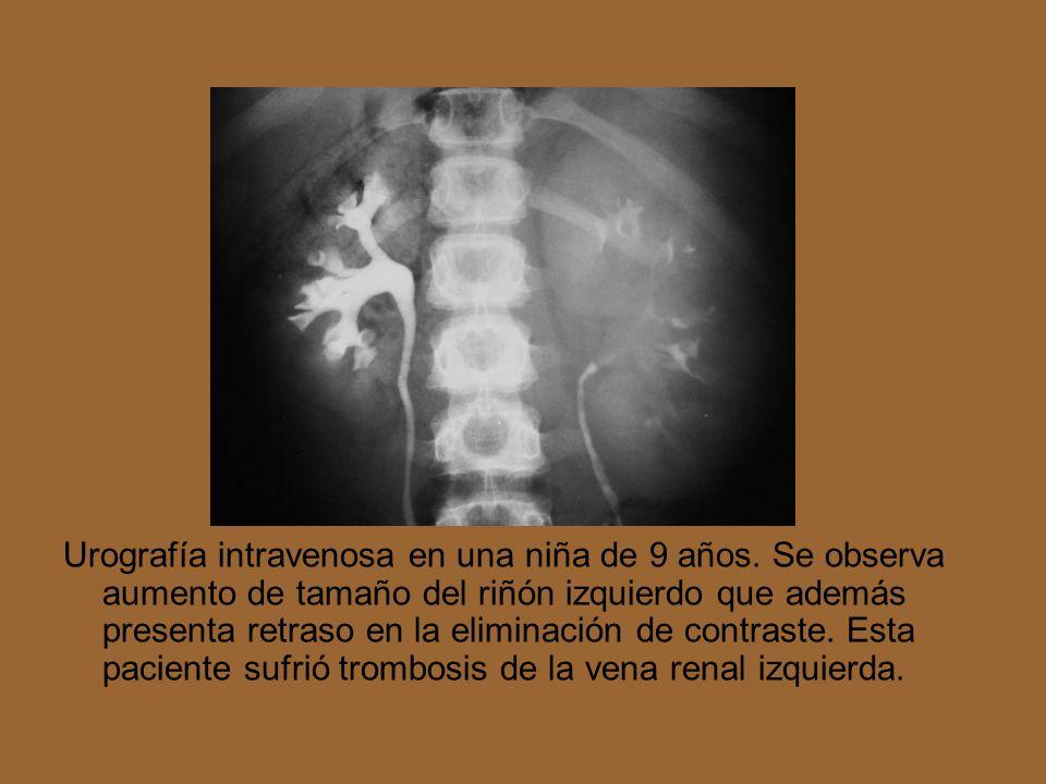 Urografía intravenosa en una niña de 9 años. Se observa aumento de tamaño del riñón izquierdo que además presenta retraso en la eliminación de contras