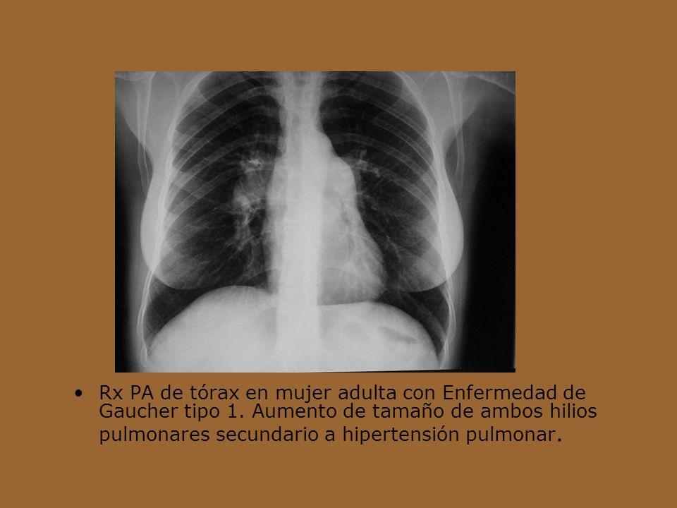 Rx PA de tórax en mujer adulta con Enfermedad de Gaucher tipo 1. Aumento de tamaño de ambos hilios pulmonares secundario a hipertensión pulmonar.