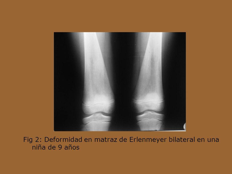Fig 2: Deformidad en matraz de Erlenmeyer bilateral en una niña de 9 años