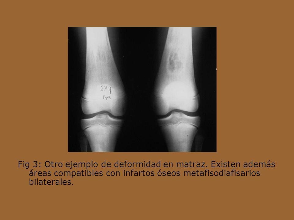 Fig 3: Otro ejemplo de deformidad en matraz. Existen además áreas compatibles con infartos óseos metafisodiafisarios bilaterales.