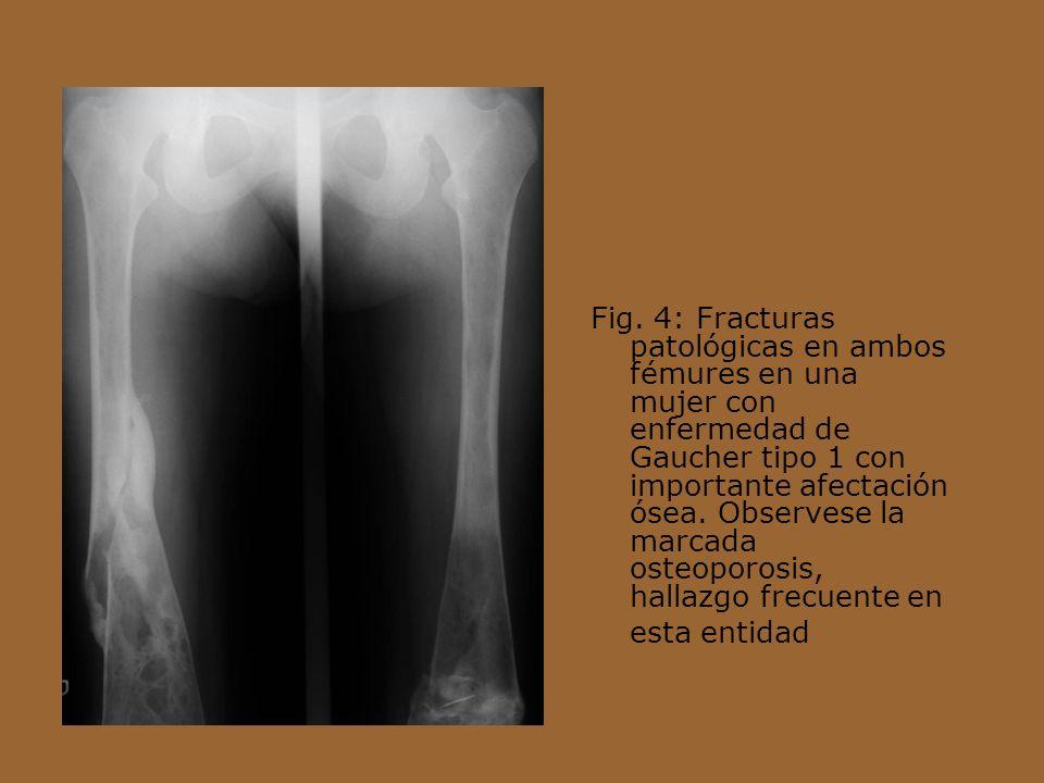 Fig. 4: Fracturas patológicas en ambos fémures en una mujer con enfermedad de Gaucher tipo 1 con importante afectación ósea. Observese la marcada oste