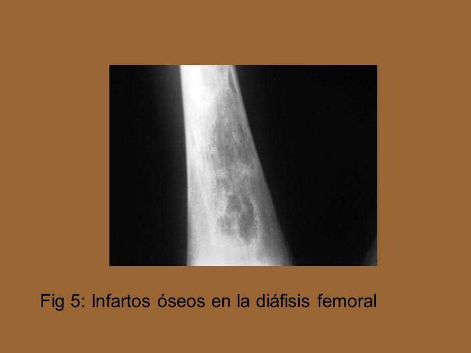 Fig 5: Infartos óseos en la diáfisis femoral