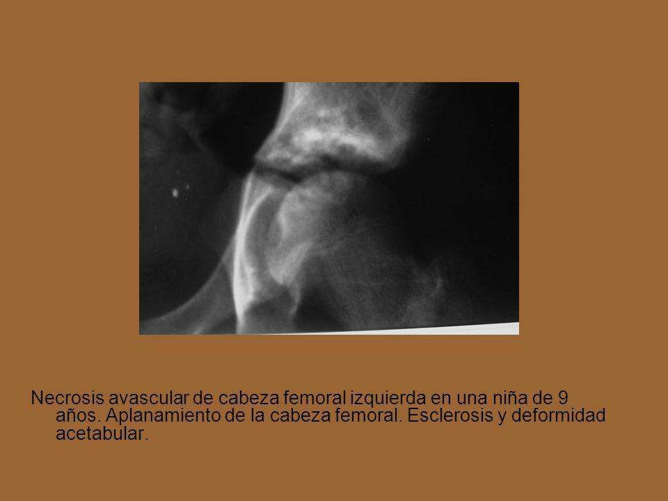 Necrosis avascular de cabeza femoral izquierda en una niña de 9 años. Aplanamiento de la cabeza femoral. Esclerosis y deformidad acetabular.