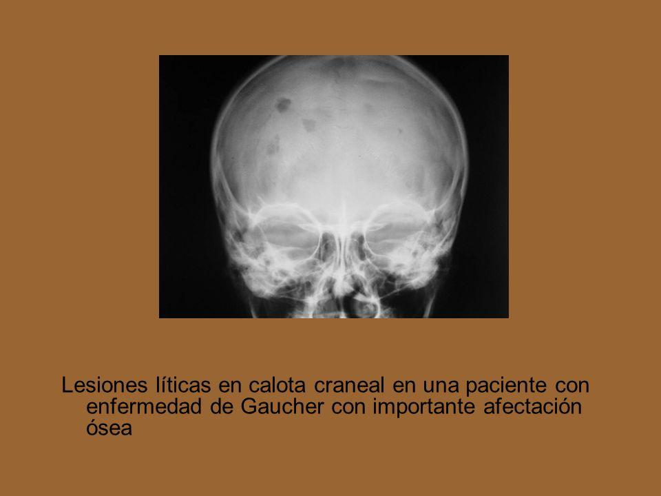 Radiografía AP de abdomen que pone de manifiesto una importante hepatoeslenomegalia