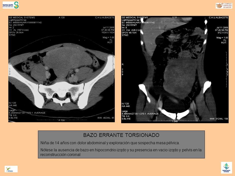 BAZO ERRANTE TORSIONADO Niña de 14 años con dolor abdominal y exploración que sospecha masa pélvica. Nótese la ausencia de bazo en hipocondrio izqdo y