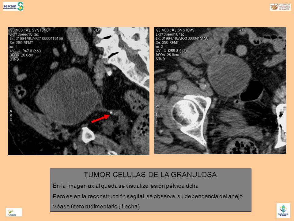 TUMOR CELULAS DE LA GRANULOSA En la imagen axial queda se visualiza lesión pélvica dcha Pero es en la reconstrucción sagital se observa su dependencia