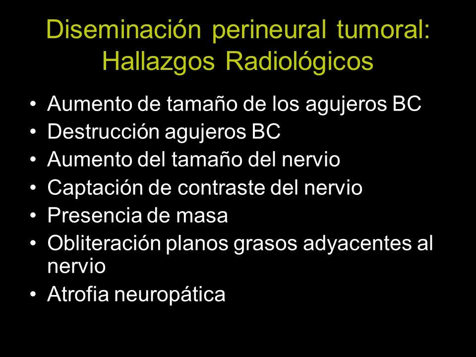Diseminación perineural tumoral: Hallazgos Radiológicos Aumento de tamaño de los agujeros BC Destrucción agujeros BC Aumento del tamaño del nervio Cap