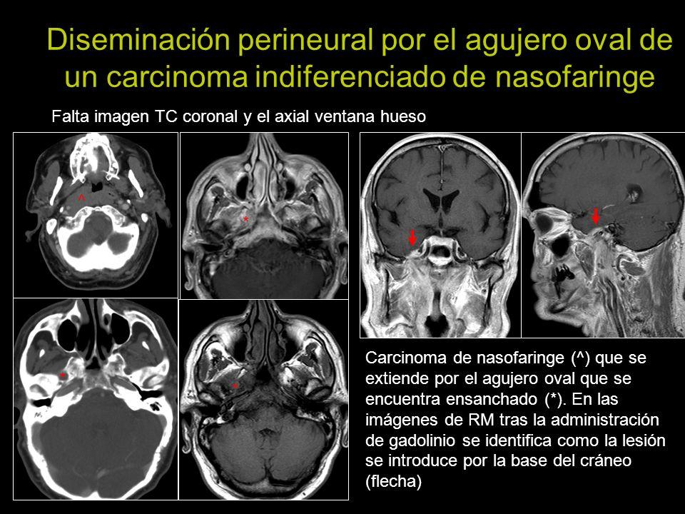 Diseminación perineural por el agujero oval de un carcinoma indiferenciado de nasofaringe Falta imagen TC coronal y el axial ventana hueso Carcinoma d