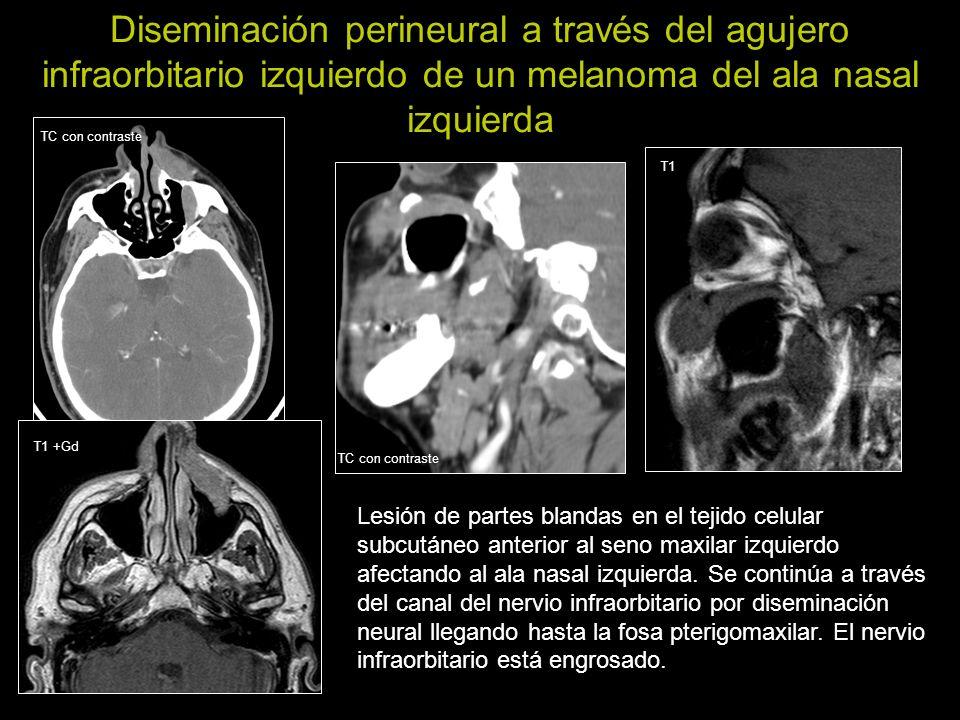 Diseminación perineural a través del agujero infraorbitario izquierdo de un melanoma del ala nasal izquierda Lesión de partes blandas en el tejido cel