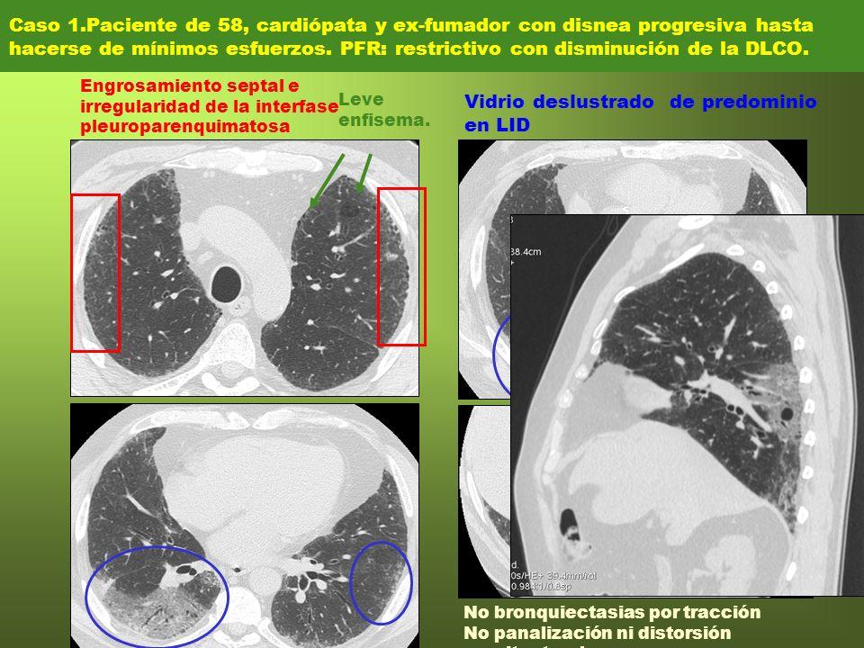 Caso 1.Paciente de 58, cardiópata y ex-fumador con disnea progresiva hasta hacerse de mínimos esfuerzos. PFR: restrictivo con disminución de la DLCO.