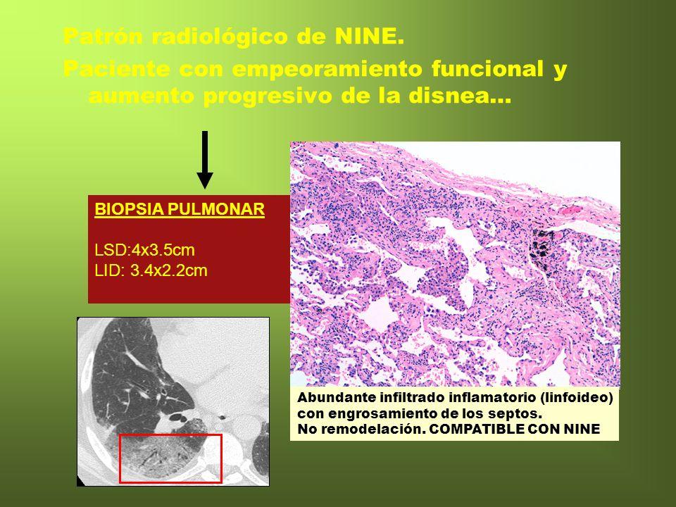 Patrón radiológico de NINE. Paciente con empeoramiento funcional y aumento progresivo de la disnea… BIOPSIA PULMONAR LSD:4x3.5cm LID: 3.4x2.2cm Abunda