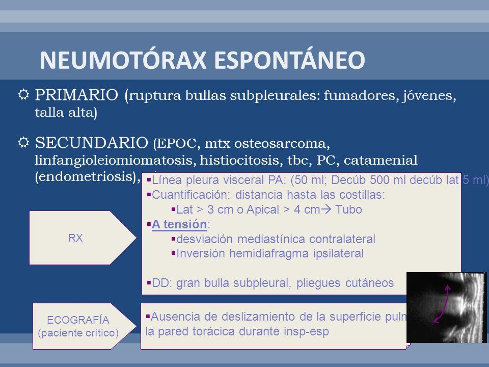 PRIMARIO ( ruptura bullas subpleurales: fumadores, jóvenes, talla alta) SECUNDARIO (EPOC, mtx osteosarcoma, linfangioleiomiomatosis, histiocitosis, tb