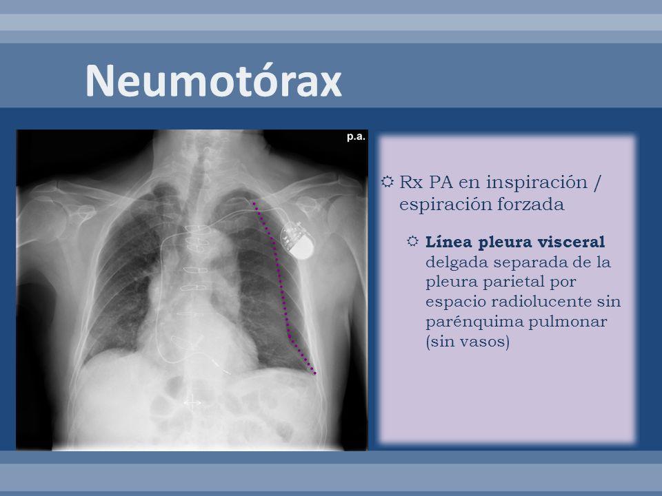 Rx PA en inspiración / espiración forzada Línea pleura visceral delgada separada de la pleura parietal por espacio radiolucente sin parénquima pulmona