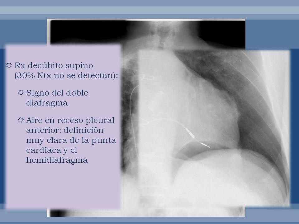 Rx decúbito supino (30% Ntx no se detectan): Signo del doble diafragma Aire en receso pleural anterior: definición muy clara de la punta cardíaca y el