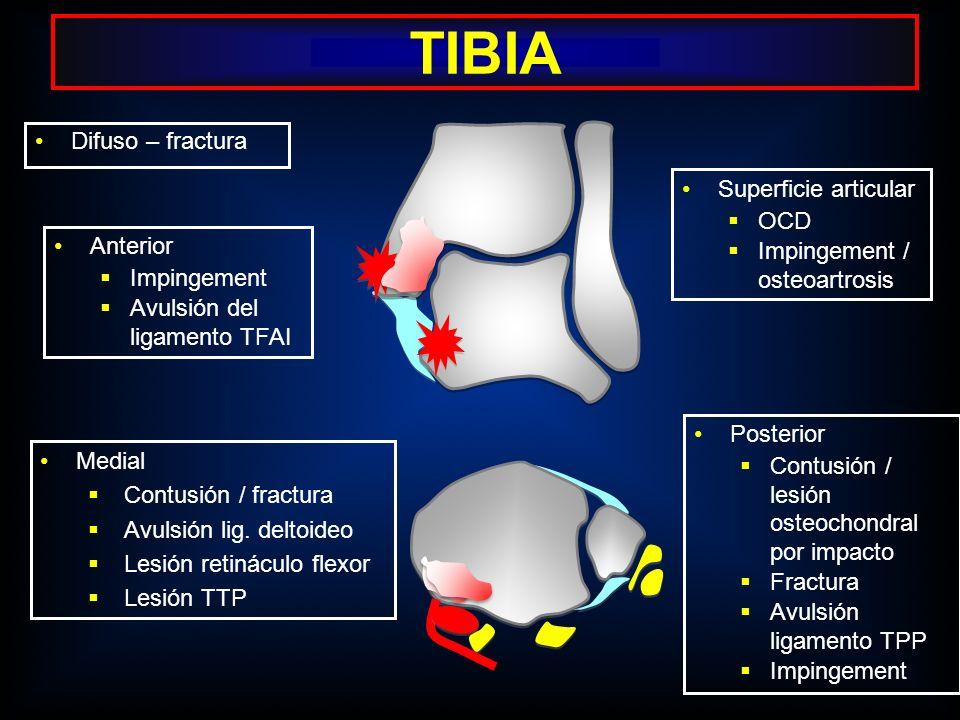 Anterior Impingement Avulsión del ligamento TFAI Difuso – fractura Posterior Contusión / lesión osteochondral por impacto Fractura Avulsión ligamento