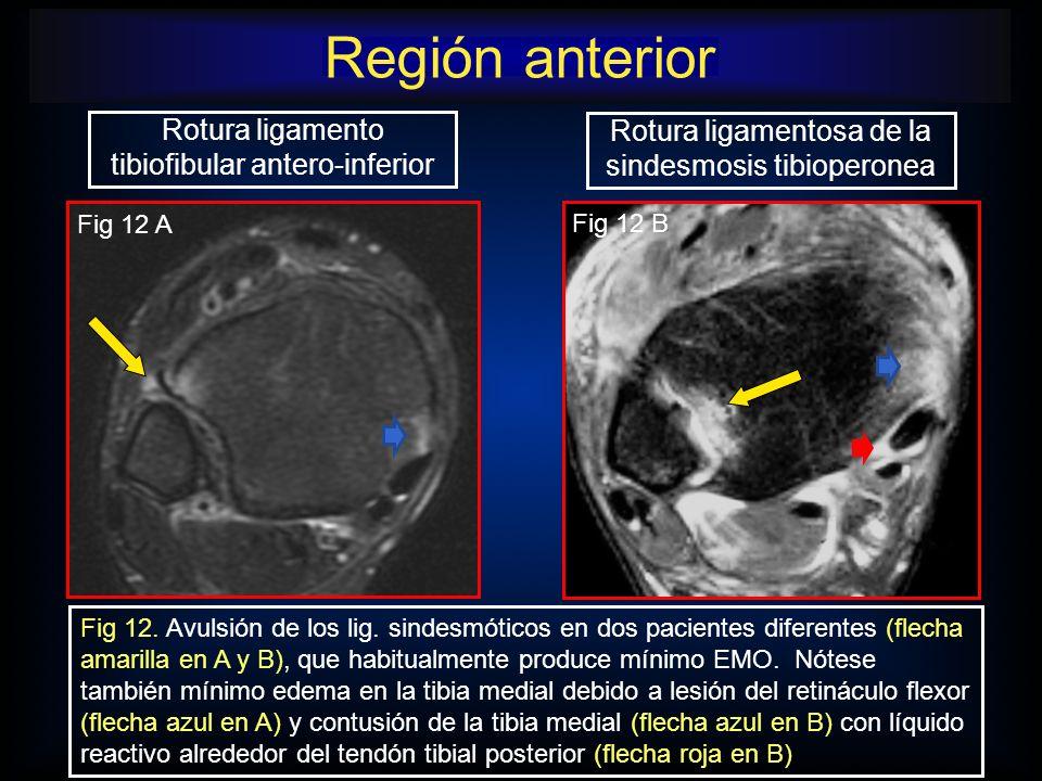 Rotura ligamento tibiofibular antero-inferior Rotura ligamentosa de la sindesmosis tibioperonea Fig 12. Avulsión de los lig. sindesmóticos en dos paci