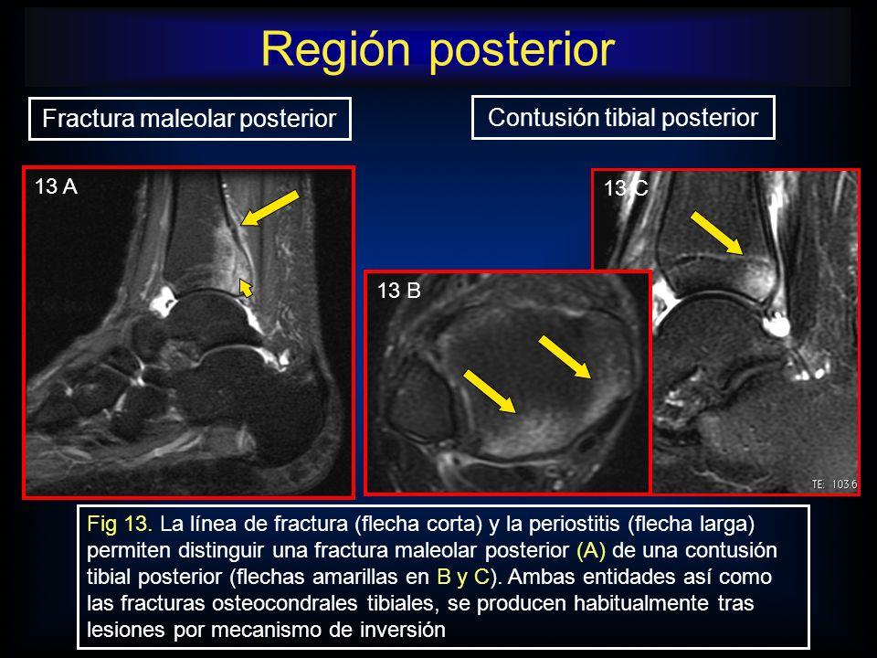 Fractura maleolar posterior Contusión tibial posterior Fig 13. La línea de fractura (flecha corta) y la periostitis (flecha larga) permiten distinguir