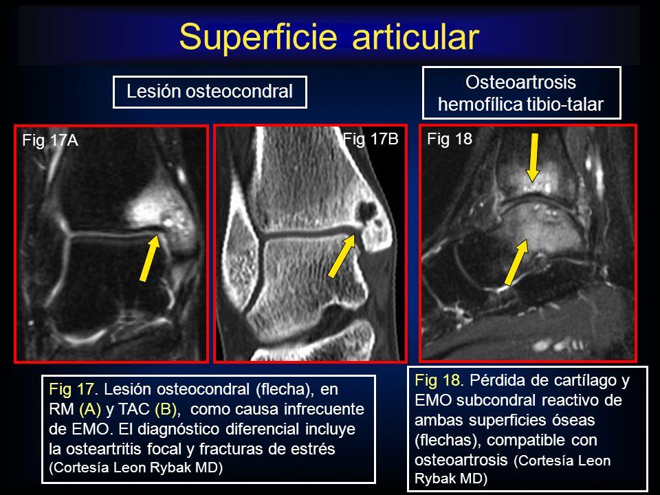 Fig 15.El EMO en el maleolo medial tras una lesión por inversión puede traducir avulsión del lig.