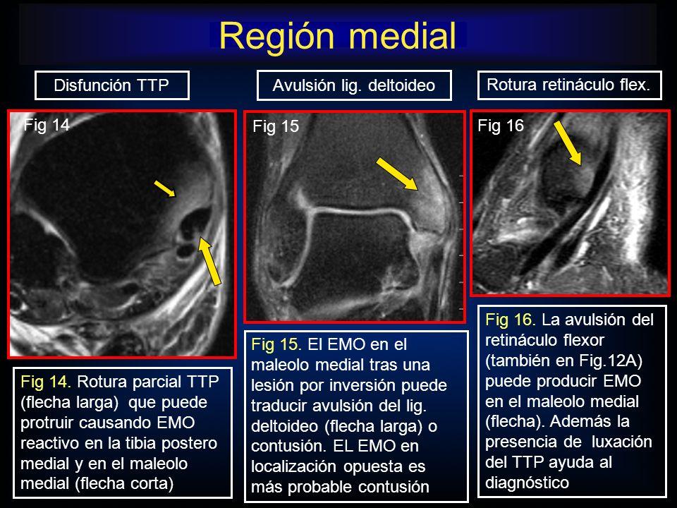 Fig 15. El EMO en el maleolo medial tras una lesión por inversión puede traducir avulsión del lig. deltoideo (flecha larga) o contusión. EL EMO en loc
