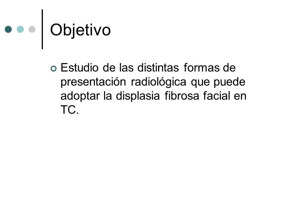 Objetivo Estudio de las distintas formas de presentación radiológica que puede adoptar la displasia fibrosa facial en TC.