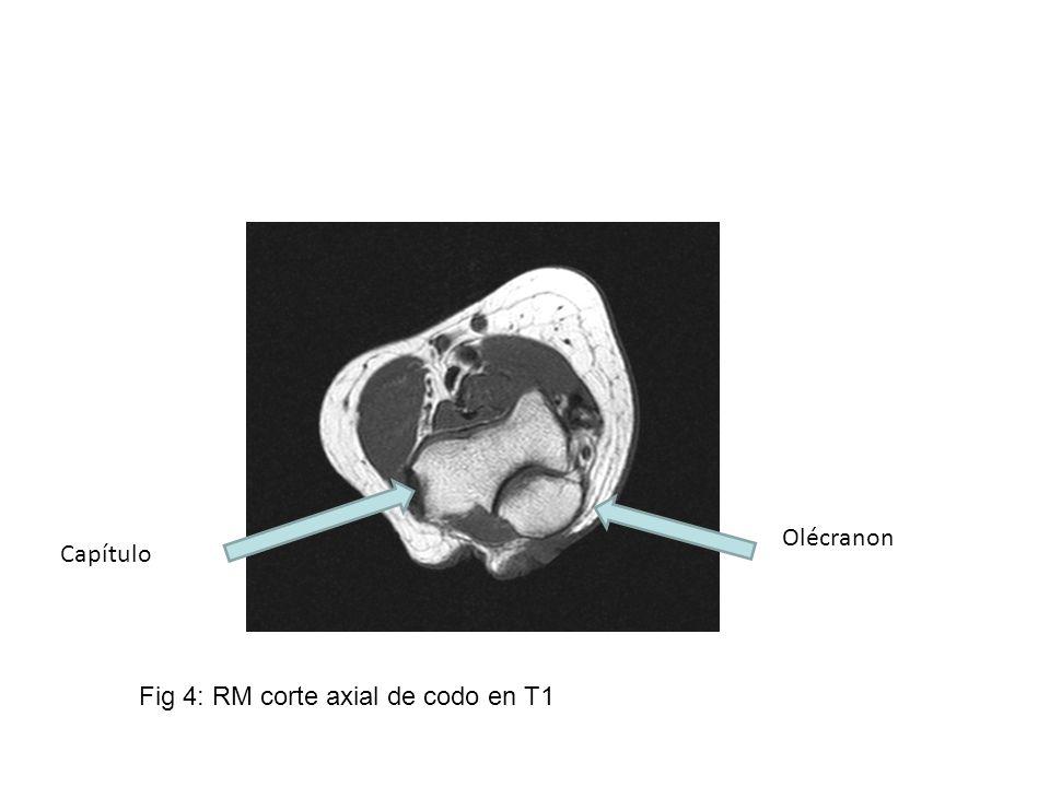 Olécranon Capítulo Fig 4: RM corte axial de codo en T1