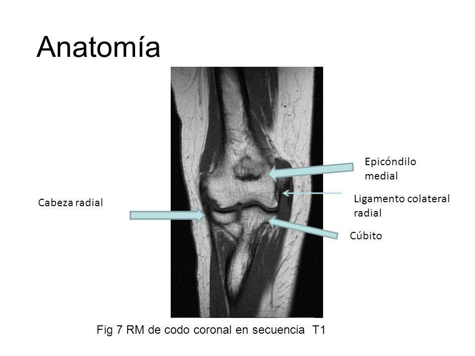 Anatomía Cabeza radial Cúbito Epicóndilo medial Ligamento colateral radial Fig 7 RM de codo coronal en secuencia T1