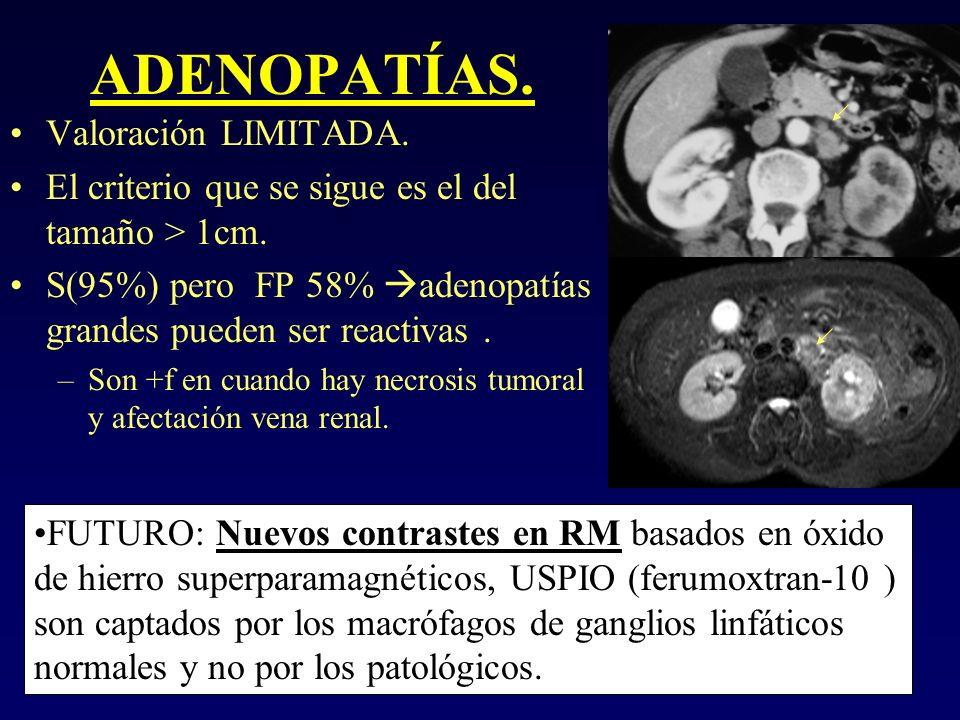 ADENOPATÍAS. Valoración LIMITADA. El criterio que se sigue es el del tamaño > 1cm. S(95%) pero FP 58% adenopatías grandes pueden ser reactivas. –Son +