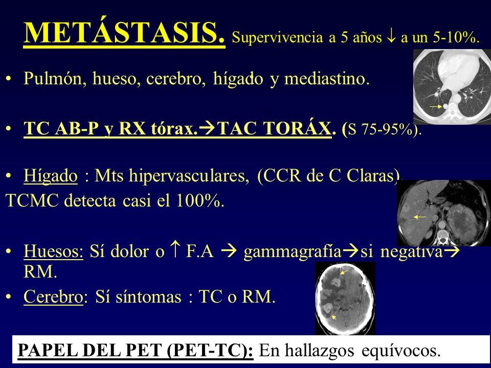 METÁSTASIS. Supervivencia a 5 años a un 5-10%.. Pulmón, hueso, cerebro, hígado y mediastino. TC AB-P y RX tórax. TAC TORÁX. ( S 75-95%). Hígado : Mts
