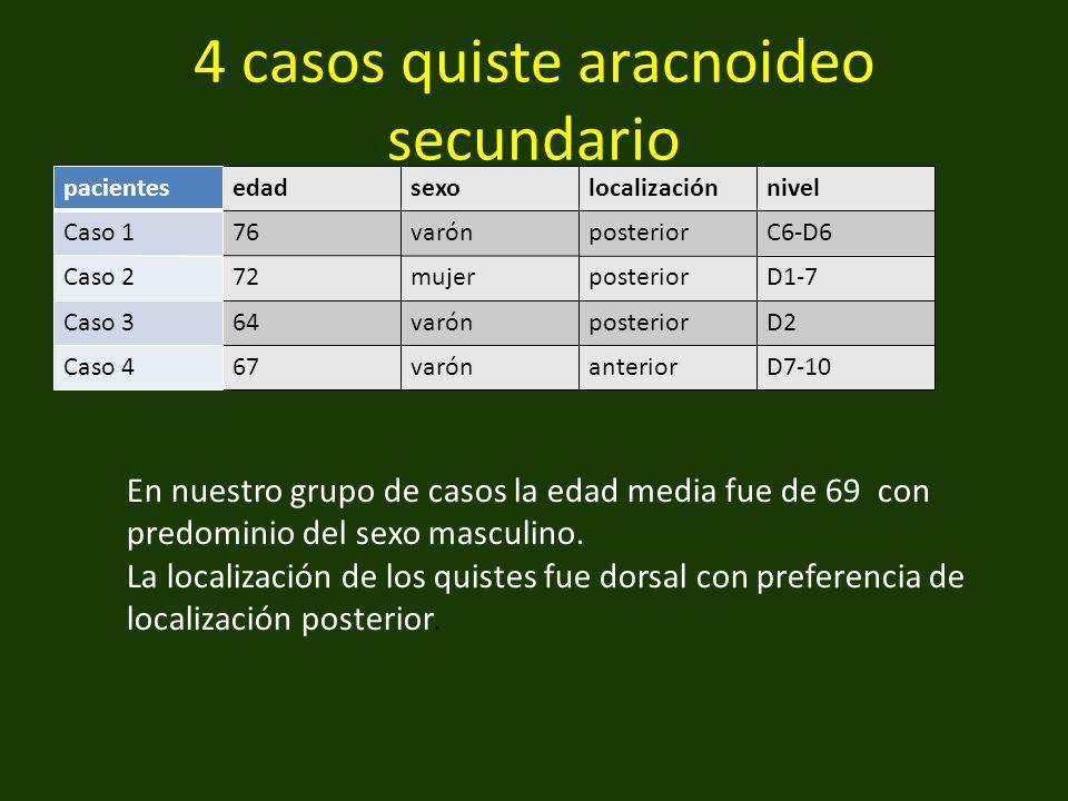 4 casos quiste aracnoideo secundario edadsexolocalizaciónnivel 76varónposteriorC6-D6 72mujerposteriorD1-7 64varónposteriorD2 67varónanteriorD7-10 En nuestro grupo de casos la edad media fue de 69 con predominio del sexo masculino.