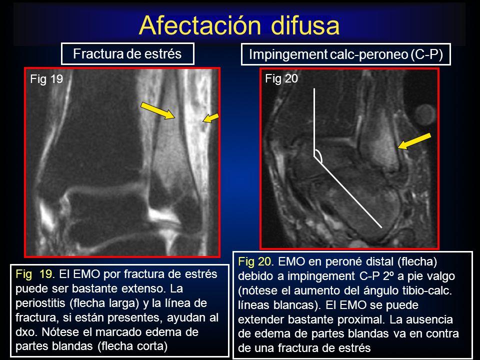 Afectación difusa Impingement calc-peroneo (C-P) Fig 20. EMO en peroné distal (flecha) debido a impingement C-P 2º a pie valgo (nótese el aumento del