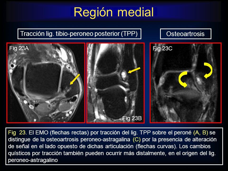 Fig 23. El EMO (flechas rectas) por tracción del lig. TPP sobre el peroné (A, B) se distingue de la osteoartrosis peroneo-astragalina (C) por la prese