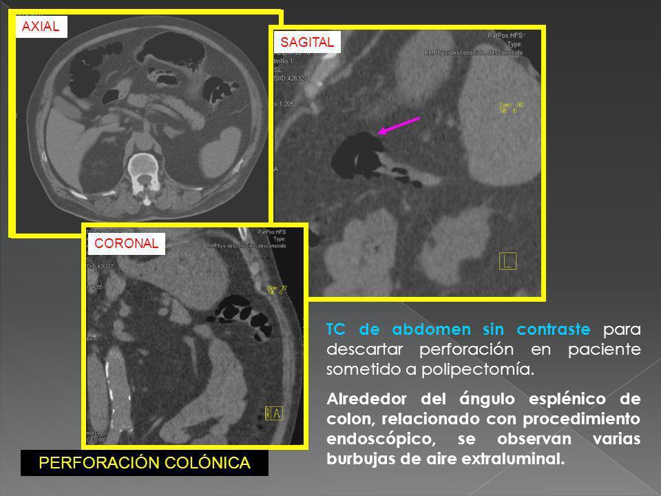TC de abdomen sin contraste para descartar perforación en paciente sometido a polipectomía. Alrededor del ángulo esplénico de colon, relacionado con p