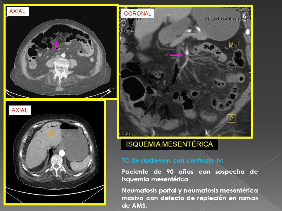 TC de abdomen con contraste iv: Paciente de 90 años con sospecha de isquemia mesentérica. Neumatosis portal y neumatosis mesentérica masiva con defect