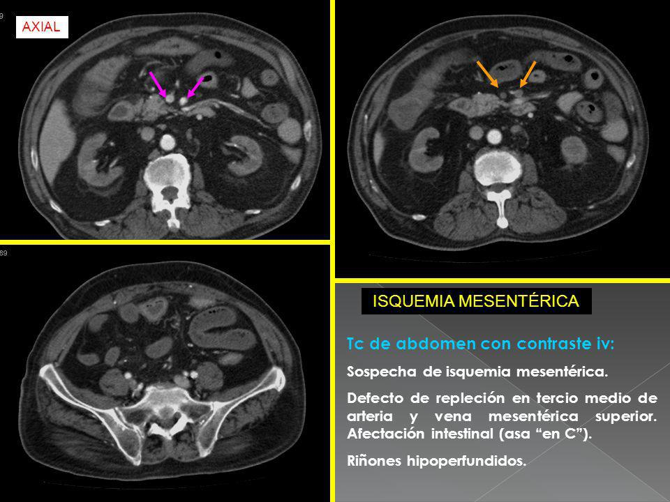 Tc de abdomen con contraste iv: Sospecha de isquemia mesentérica. Defecto de repleción en tercio medio de arteria y vena mesentérica superior. Afectac
