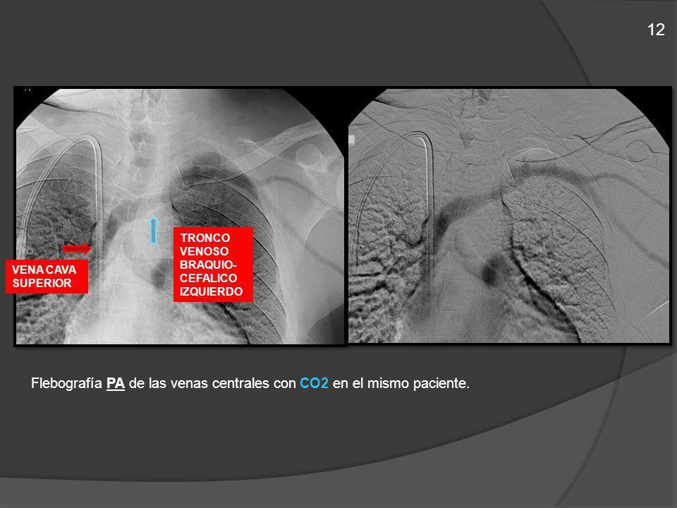 Flebografía PA de las venas centrales con CO2 en el mismo paciente. TRONCO VENOSO BRAQUIO- CEFALICO IZQUIERDO VENA CAVA SUPERIOR 12