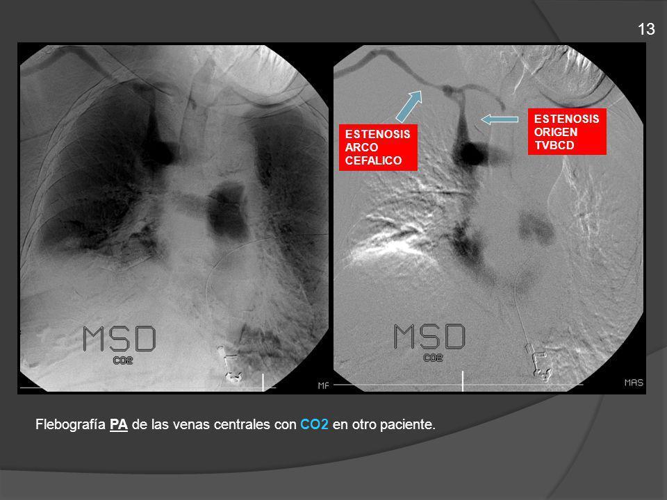 Flebografía PA de las venas centrales con CO2 en otro paciente. ESTENOSIS ARCO CEFALICO ESTENOSIS ORIGEN TVBCD 13