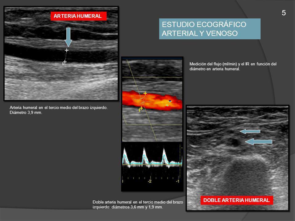 Arteria humeral en el tercio medio del brazo izquierdo. Diámetro 3,9 mm. Doble arteria humeral en el tercio medio del brazo izquierdo: diámetros 3,6 m