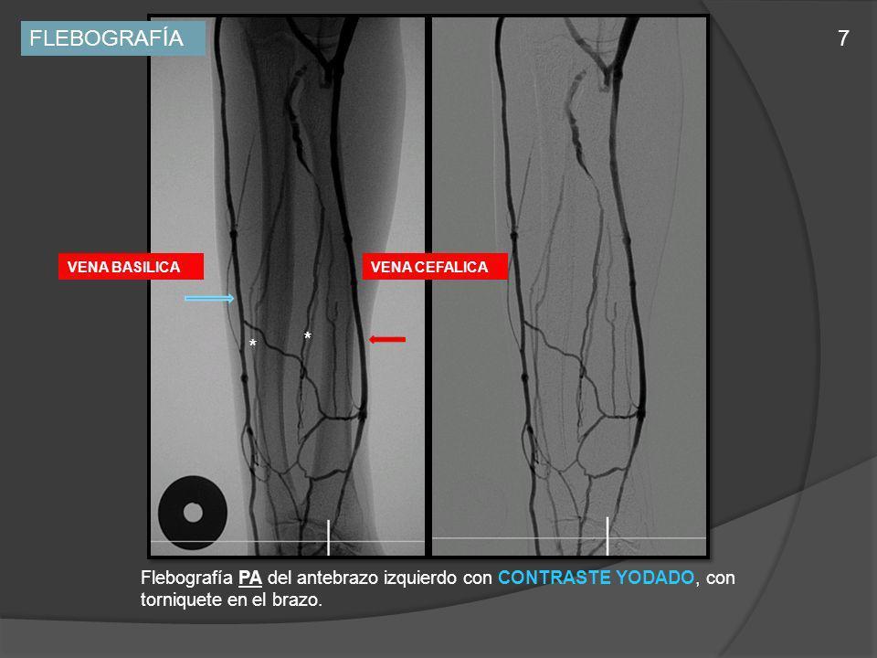 Flebografía PA del antebrazo izquierdo con CONTRASTE YODADO, con torniquete en el brazo. * * VENA BASILICAVENA CEFALICA FLEBOGRAFÍA7