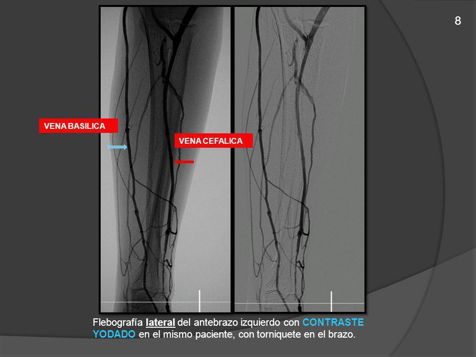 Flebografía lateral del antebrazo izquierdo con CONTRASTE YODADO en el mismo paciente, con torniquete en el brazo. VENA BASILICA VENA CEFALICA 8