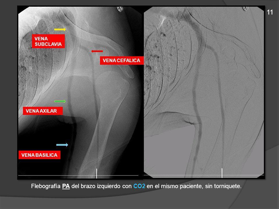 Flebografía PA del brazo izquierdo con CO2 en el mismo paciente, sin torniquete. VENA CEFALICA VENA BASILICA VENA AXILAR VENA SUBCLAVIA 11