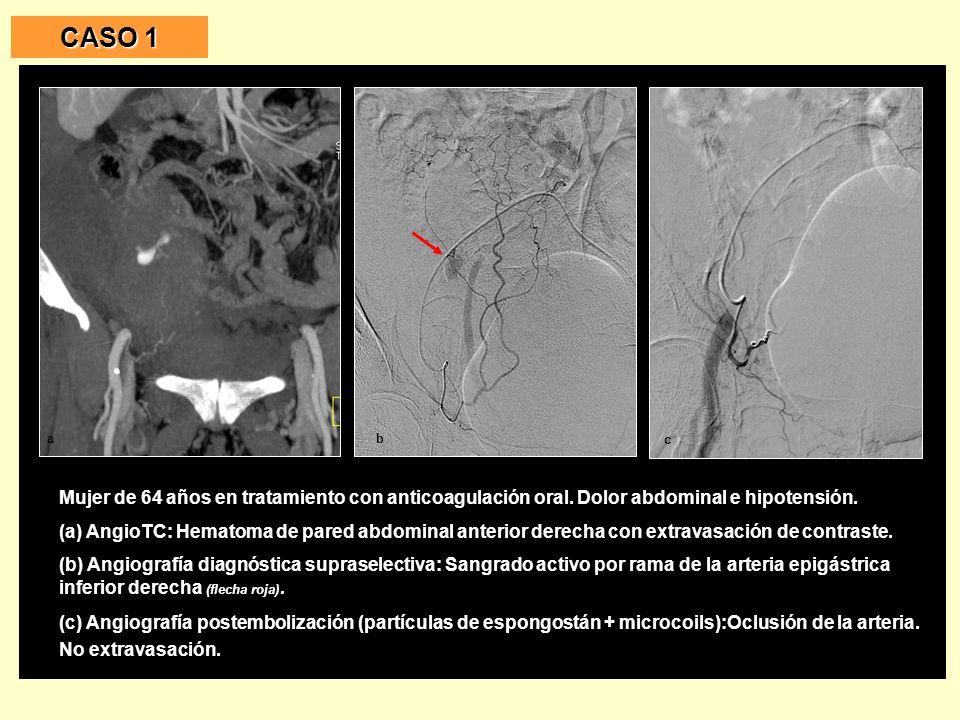 Mujer de 67 años.Fibrilación auricular con tratamiento anticoagulante.