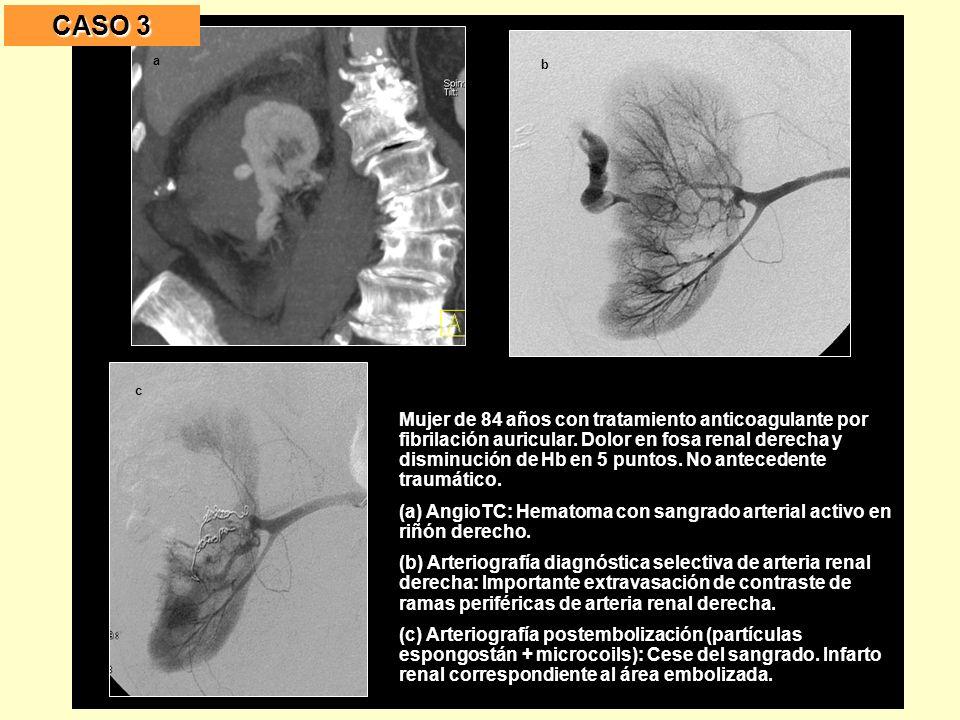 Mujer de 84 años con tratamiento anticoagulante por fibrilación auricular.