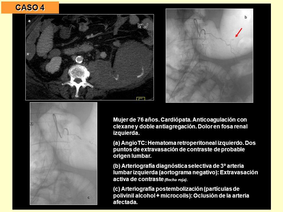 Mujer de 76 años.Cardiópata. Anticoagulación con clexane y doble antiagregación.