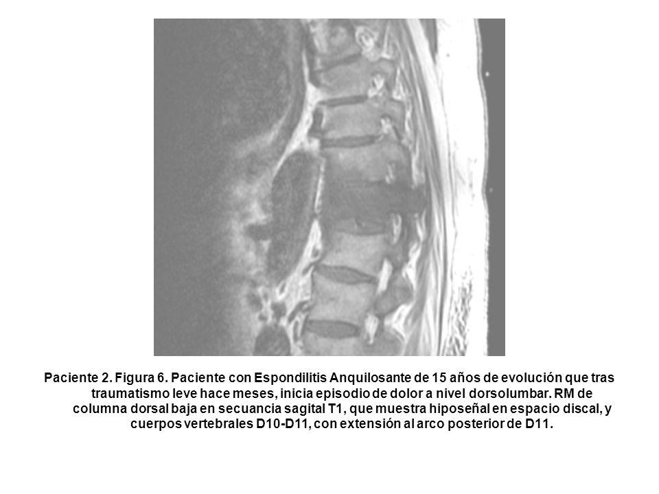 Paciente 2. Figura 6. Paciente con Espondilitis Anquilosante de 15 años de evolución que tras traumatismo leve hace meses, inicia episodio de dolor a