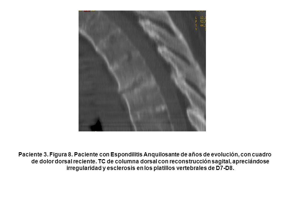 Paciente 3. Figura 8. Paciente con Espondilitis Anquilosante de años de evolución, con cuadro de dolor dorsal reciente. TC de columna dorsal con recon
