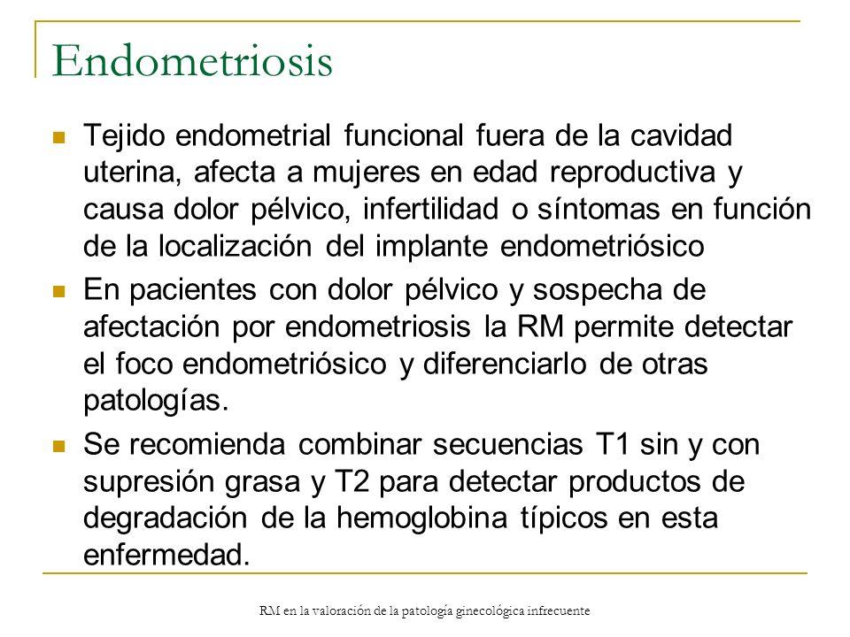 RM en la valoración de la patología ginecológica infrecuente Endometriosis Tejido endometrial funcional fuera de la cavidad uterina, afecta a mujeres