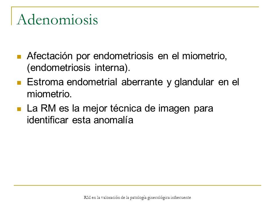 RM en la valoración de la patología ginecológica infrecuente Adenomiosis Afectación por endometriosis en el miometrio, (endometriosis interna). Estrom