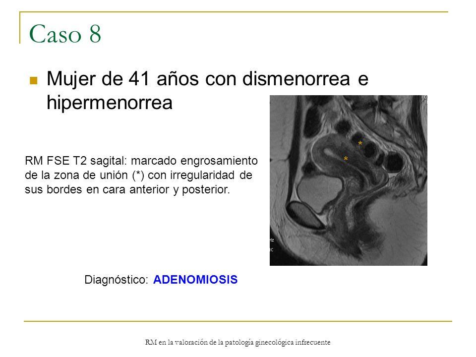 RM en la valoración de la patología ginecológica infrecuente Caso 8 Mujer de 41 años con dismenorrea e hipermenorrea RM FSE T2 sagital: marcado engros