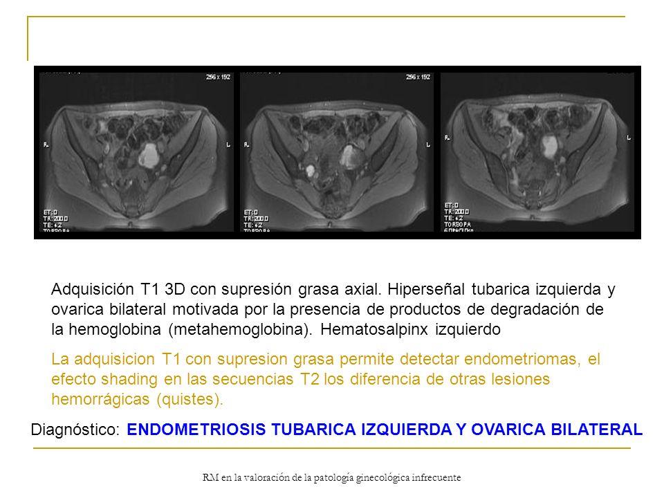 RM en la valoración de la patología ginecológica infrecuente Adquisición T1 3D con supresión grasa axial. Hiperseñal tubarica izquierda y ovarica bila