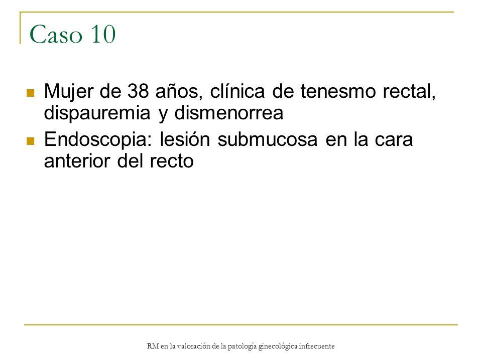 RM en la valoración de la patología ginecológica infrecuente Caso 10 Mujer de 38 años, clínica de tenesmo rectal, dispauremia y dismenorrea Endoscopia